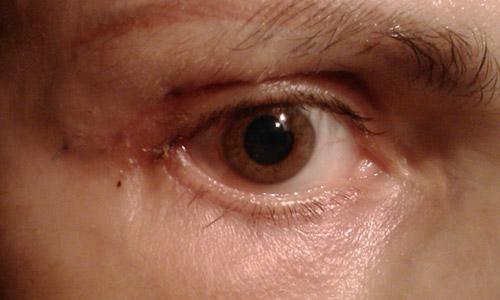 Осложнения после блефаропластики