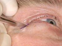 Возможные осложнения после блефаропластики