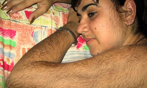 Гирсутизм на теле