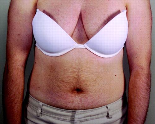 каталог термобелья как похудеть при гиперандрогении первой