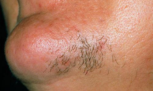Гирсутизм на лице