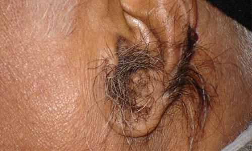 Гипертрихоз на ушной раковине