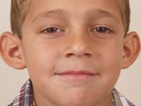 Лопоухость – как исправить торчащие уши?
