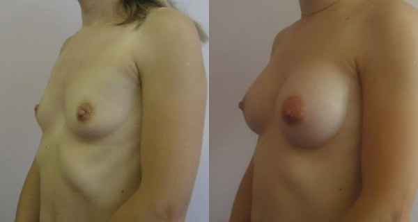 Хирург Фуад Фархат, фото до и после увеличения груди