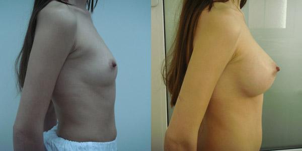 Упражнения по увеличению бюста у женщин