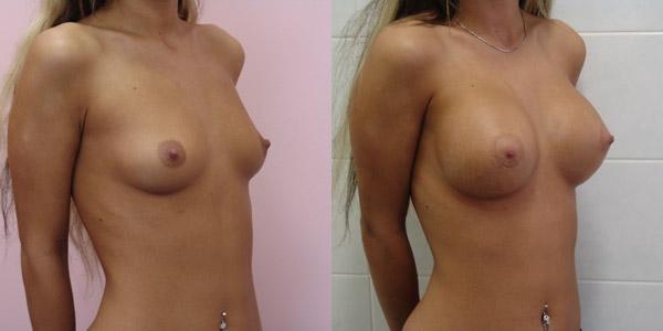 Хирург Балкизов Вячеслав, фото до и после увеличения груди
