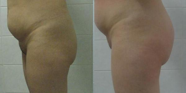 Фото до и после глютеопластики (пластики ягодиц)