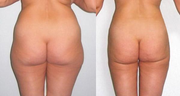 Фото до и после липосакции