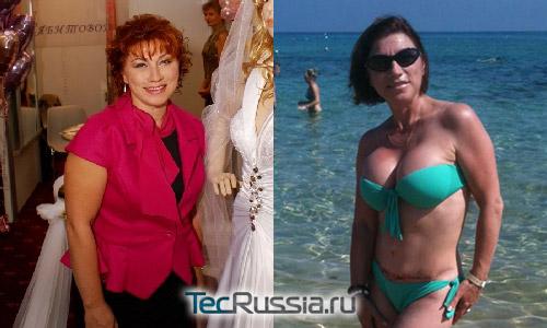 Роза Сябитова до и после пластики