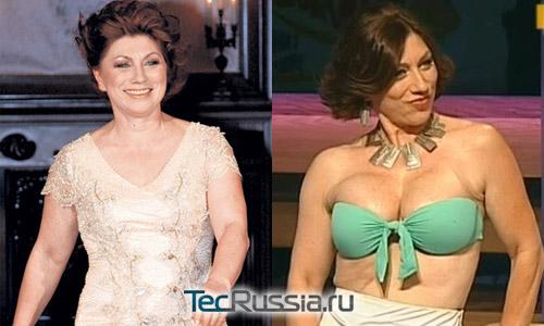 Роза Сябитова до и после пластических операций