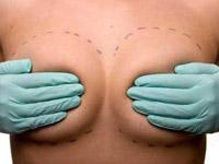 Когда грудь слишком велика…