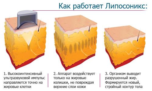 Аппарат Liposonix