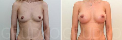 До и после увеличения груди у А. Грудько