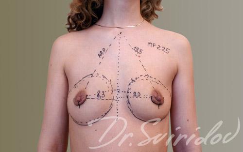 Бесшовное увеличение груди