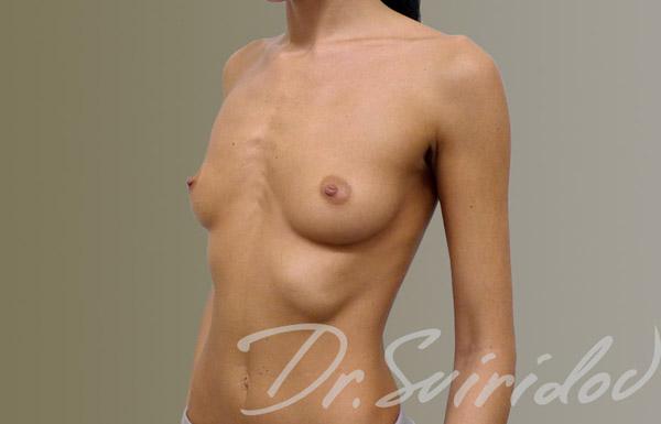 Хирург Сергей Свиридов, фото до и после пластики груди по методике «Грудь без шва»