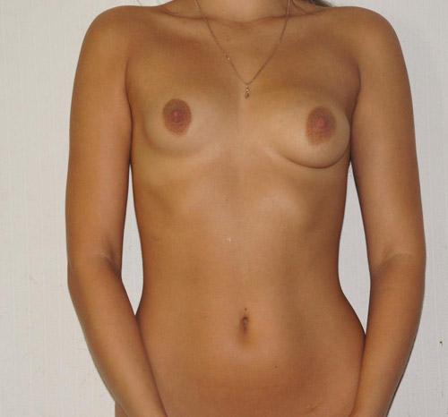 Ассимметричная грудь