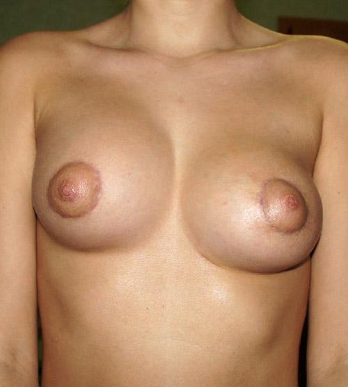 Фото через 3 дня после коррекции дефектов развития груди