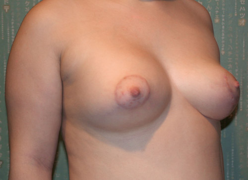 Фото после коррекции асимметрии груди