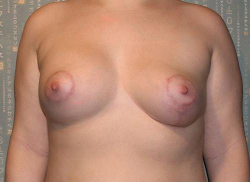 Через 3 месяца после коррекции асимметрии груди