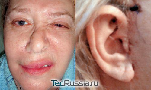 последствия после операции опухоль головного мозга фото