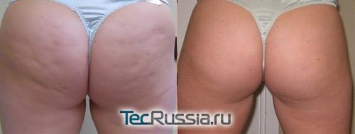 Термаж против целлюлита – фото до и после