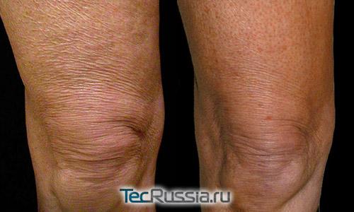 Термаж коленей – фото до и после