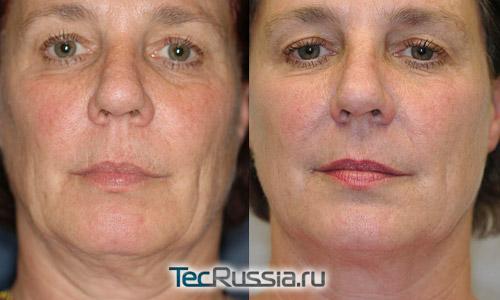 Термаж лица – фото до и после