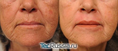 Дермабразия – фото до и после