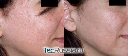 Алмазная дермабразия – фото до и после