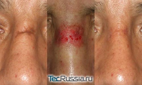 Дермабразия рубца (шрама) – фото до и после