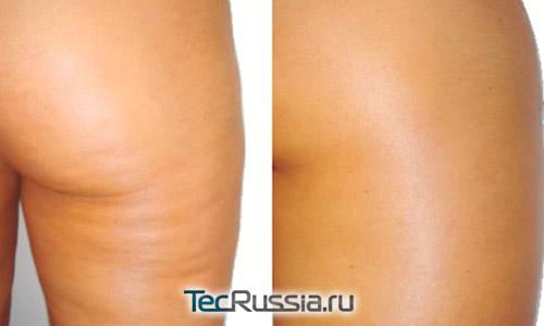 Фото до и после Endospheres Therapy
