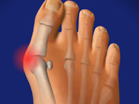 Вальгусная деформация большого пальца стопы причины симптомы и лечение