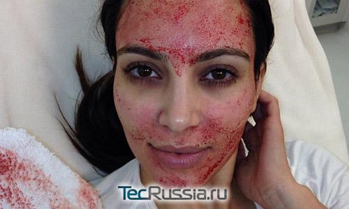 Ким Кардашян сделала плазмолифтинг
