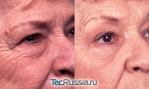 Фото до и после удаления жировых грыж