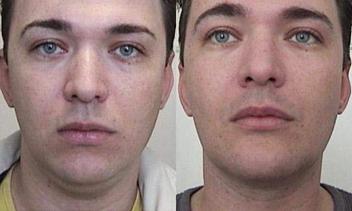 Пластика подбородка фото до и после