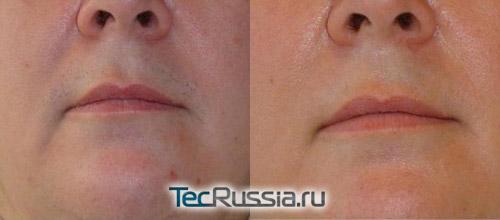 Фото до и после ЭЛОС-эпиляции верхней губы