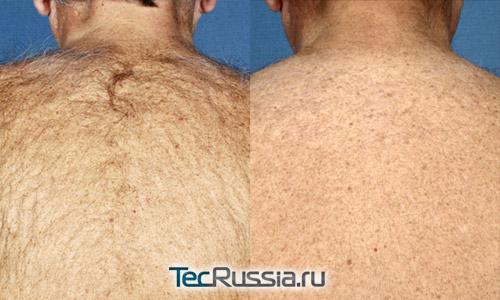 Фото до и после ЭЛОС-эпиляции спины