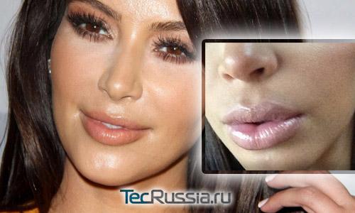 Ким Кардашян увеличила губы