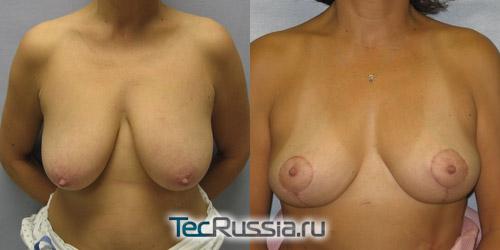 результаты лифтинга обвисшей груди