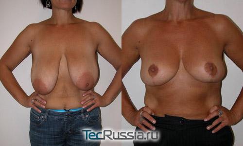 до и после подтяжки опущенных молочных желез