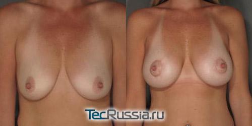 Птоз груди, фото до и после коррекции
