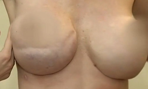 григорянц пластический хирург липосакция
