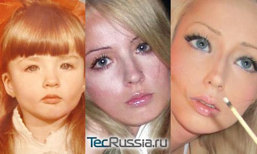 Нос Валерии Лукьяновой в детстве, юности и в настоящее время