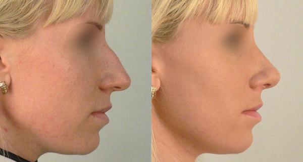 Хирург Харитонов Сергей, фото до и после ринопластики