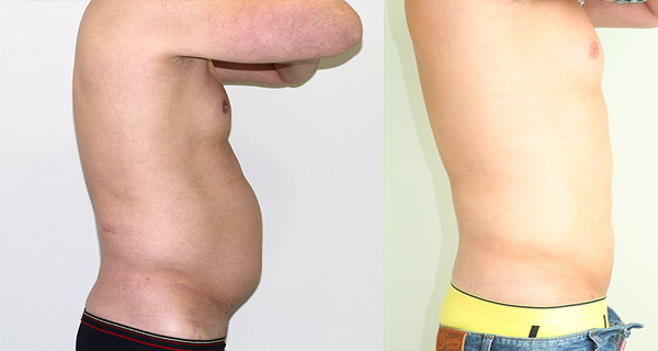 Фото до и после лазерной липосакции (мужчина)