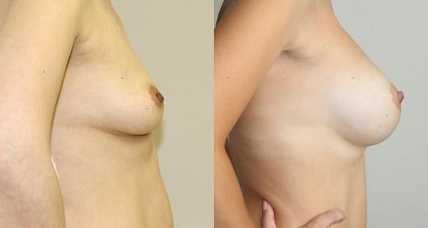 увеличение груди, фото до и после операции