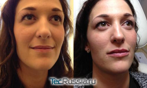 Фото до и после инъекций Juvederm Volbella