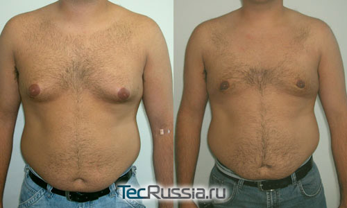 Фото до и после удаления липомастии