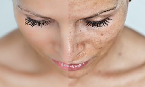 Как убрать пигментацию кожи лица - народные средства борьбы (пилинги), советы от Альпики, Мобильная версия