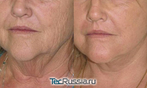 Фото до и после лечения фотостарения
